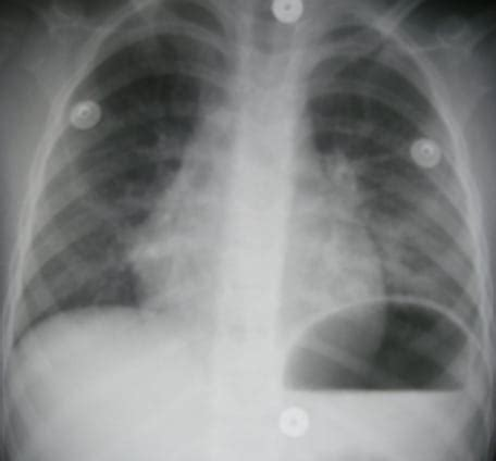 Chemical Pneumonitis from Hydrocarbon Aspiration - The